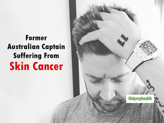 Former Australian Captain Michael Clarke Undergoes Surgery For <strong>Skin</strong> <strong>Cancer</strong>, Gives Special Advice To Youth