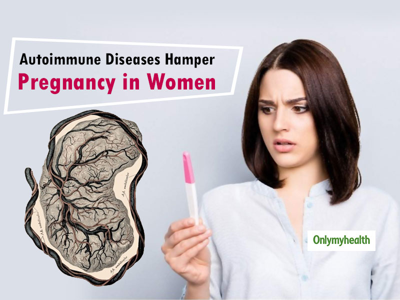 Autoimmune Diseases Can Be A Reason Of Infertility In Women, Know Its Treatment