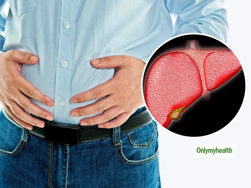 Stomach Bloating Can Be A Sign Of An Enlarged Liver. Know The  Reason And Diagnosis
