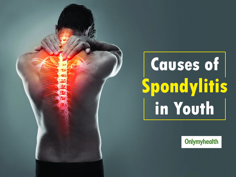Causes Of Spondylitis In Youth: Know-How Ayurveda Helps In  Curing The Disease