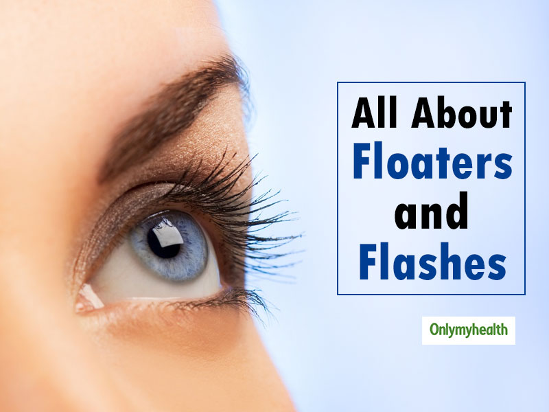 Floaters and Flashes in the Eyes: Causes and Treatment
