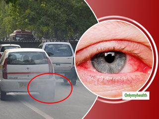 Vehicular <strong>Pollution</strong>: Major Cause Of Several Eye Diseases