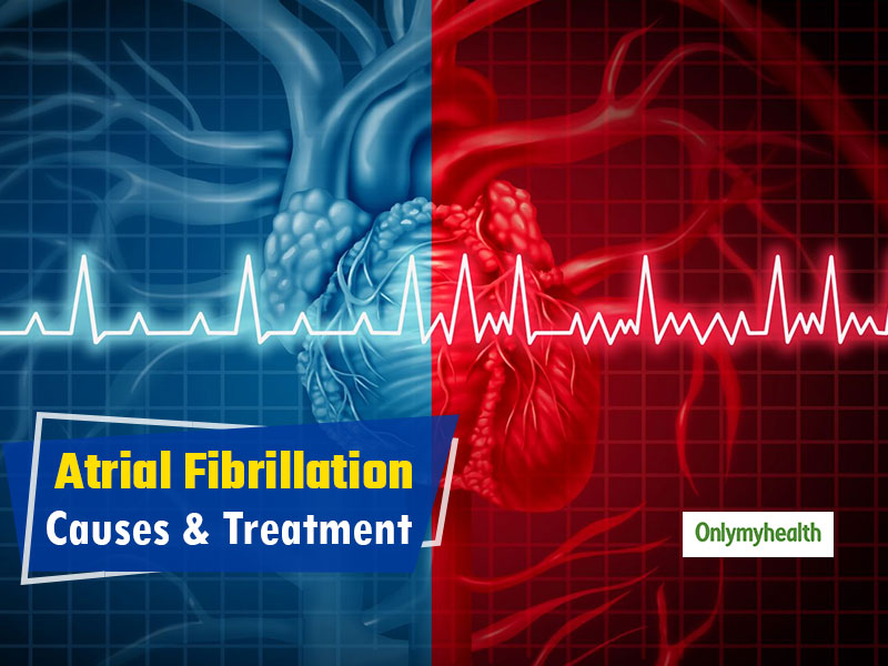 World Heart Day 2019: All You Need To Know About Atrial Fibrillation, Its Causes and Treatment