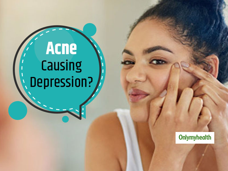 Is Your Acne-Filled Face Making You Depressed?