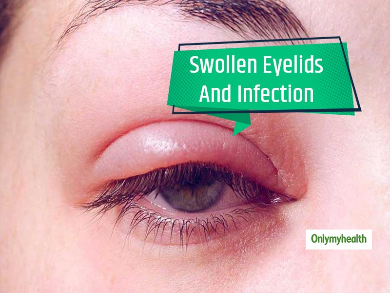 Why You Shouldn't Ignore Those Early Morning Swollen Eyelids
