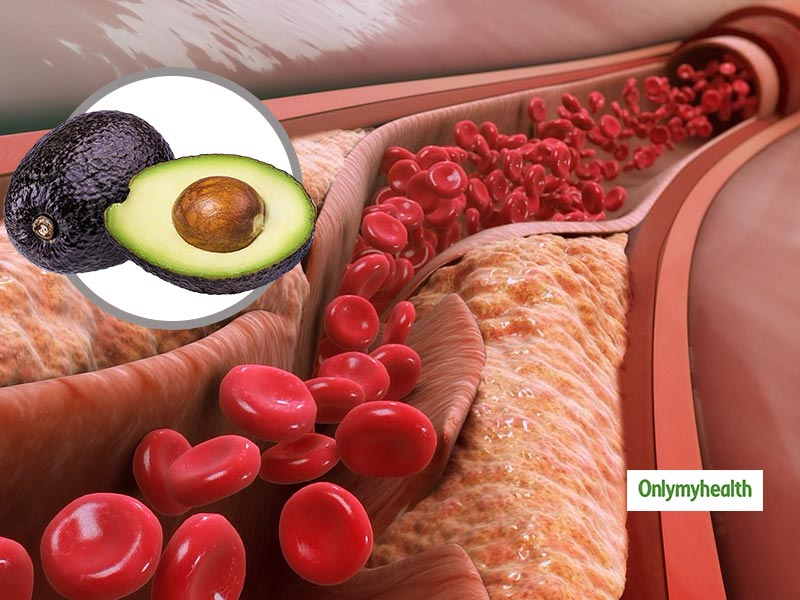 Can An Avocado Help In Lowering Cholesterol?