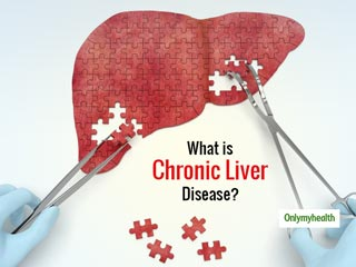 <strong>Chronic</strong> Liver Disease Signs And Symptoms: Gastroenterologist Tips To Tackle Them