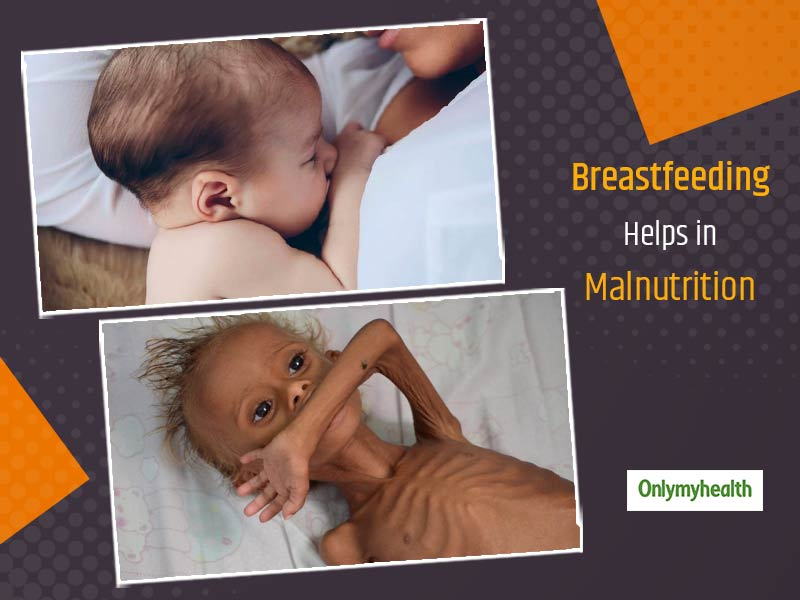 World Breastfeeding Week 2020: Can Breastfeeding Prevent Malnutrition In Infants, Doctor Answers