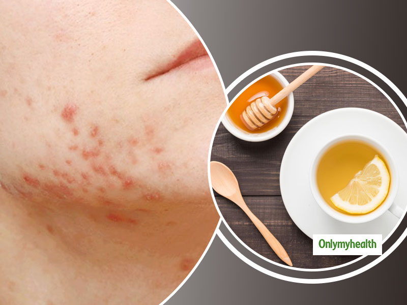 Acne And Pimples: Facts To Know Before Undertaking Home Remedies