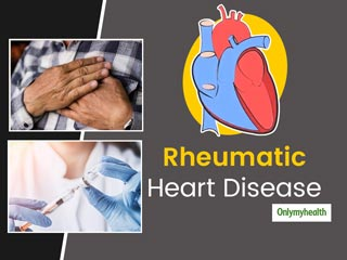 Rheumatic Heart Disease: Causes, <strong>Symptoms</strong>, Diagnosis, And Treatment
