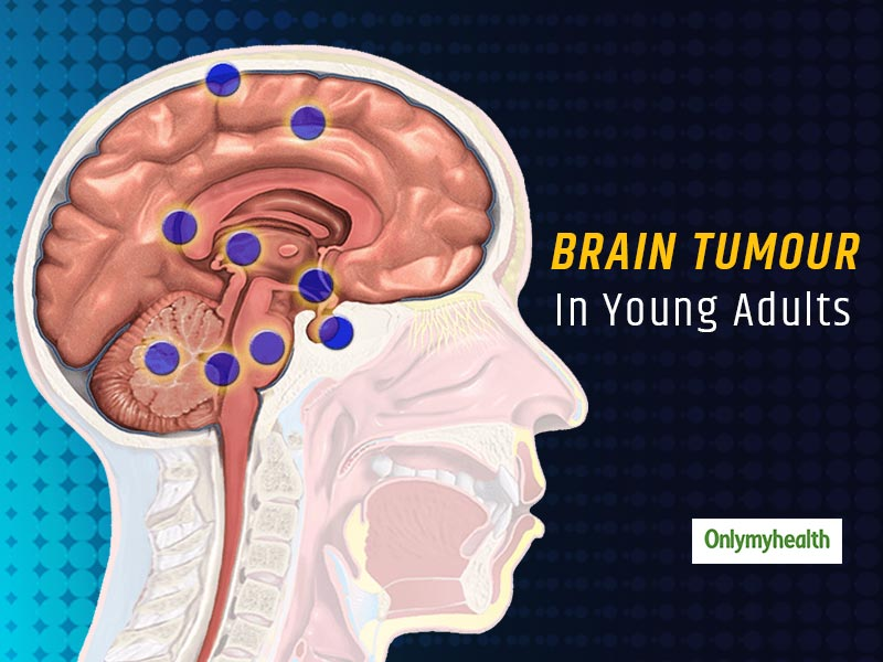 Brain Tumor in Adults: What Are The Causes And Risk Factors Related To It?
