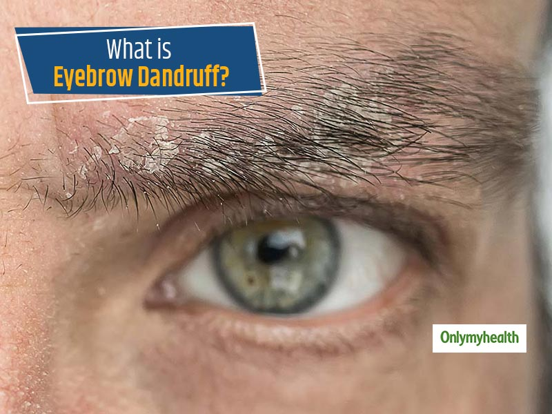 Ever heard of Eyebrow dandruff? Know Tips to Tackle This Issue