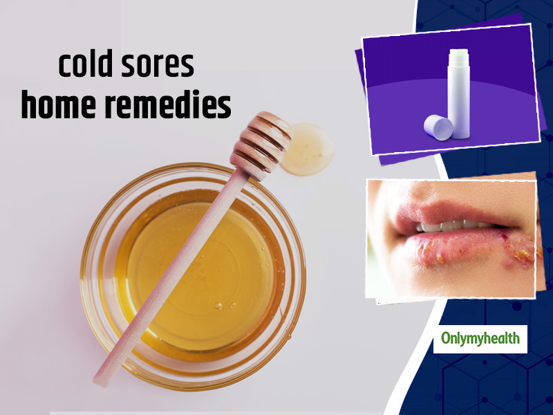 Useful Home Remedies To Get Rid Of Fever Blisters Or Cold Sores