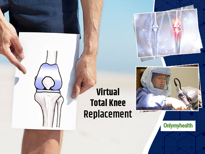 Virtual Total Knee Replacement: Know The Procedure, Effects, Pros And Cons Of This Surgery