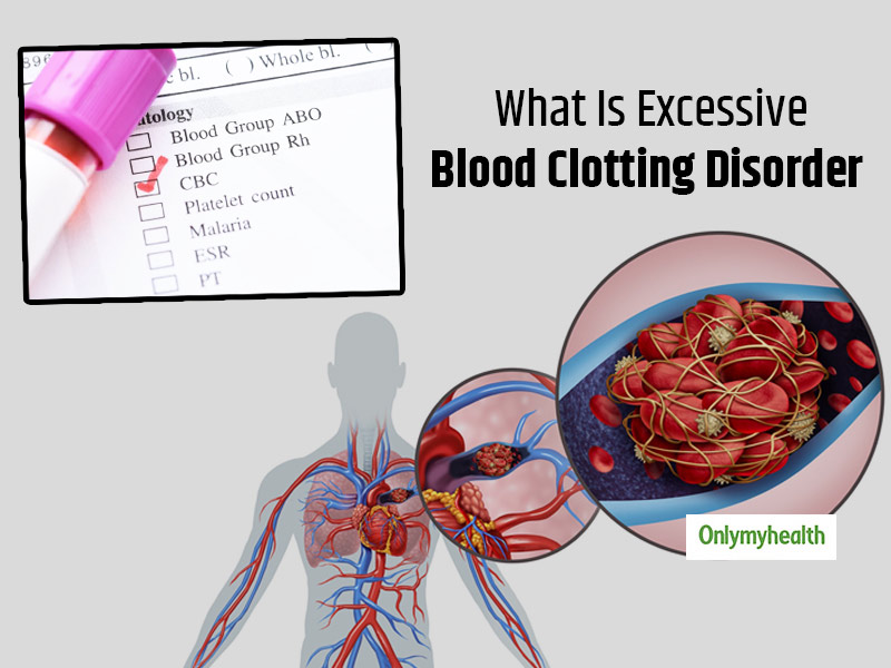 What Is Excessive Blood Clotting Disorder? Here Are Its Causes, Signs, Diagnosis And Treatment