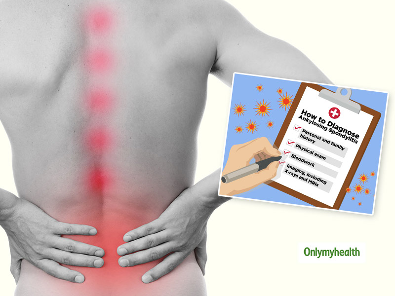 What Is Ankylosing Spondylitis? Symptoms, Diagnosis, Treatment And Tips For Prevention