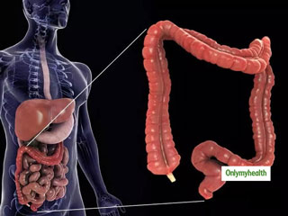 How To <strong>Cleanse</strong> Your Intestines And Colon Naturally?
