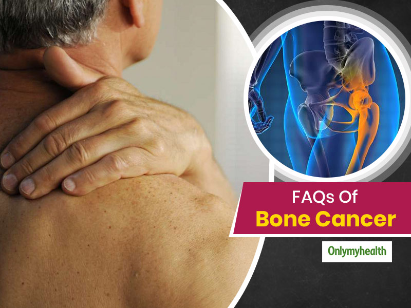 Bone Cancer Treatment Can Have Physical, Social And Financial Side Effects, Know About It All