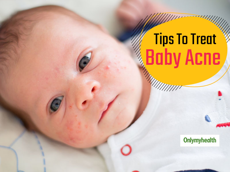 Baby Acne Why Does It Happen And Ways To Get Rid Of Acne Spots