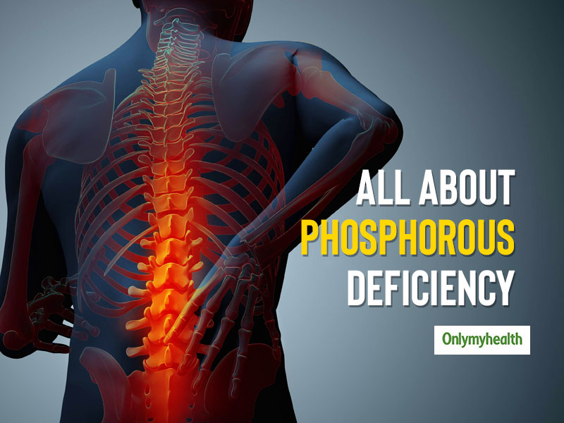 Phosphorus Deficiency: Know The Causes, Symptoms and Health Problems