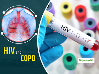 Patients Of HIV Are At Greater Risk Of Chronic Obstructive Pulmonary Disease