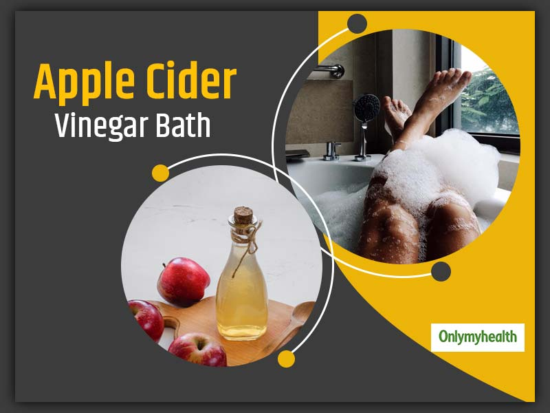Take Apple Cider Vinegar Bath To Fight Infections, Read Other Benefits