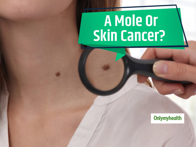 Mole Or Melanoma: How To Tell If It Is Just a Mole Or An Underlying Skin Cancer