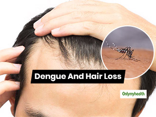 Dengue Fever: A <strong>Disease</strong> Which Can Trigger Hair Loss