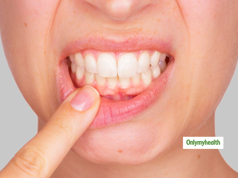 Red Swollen Gums: Here Are The 3 Major Causes Behind It