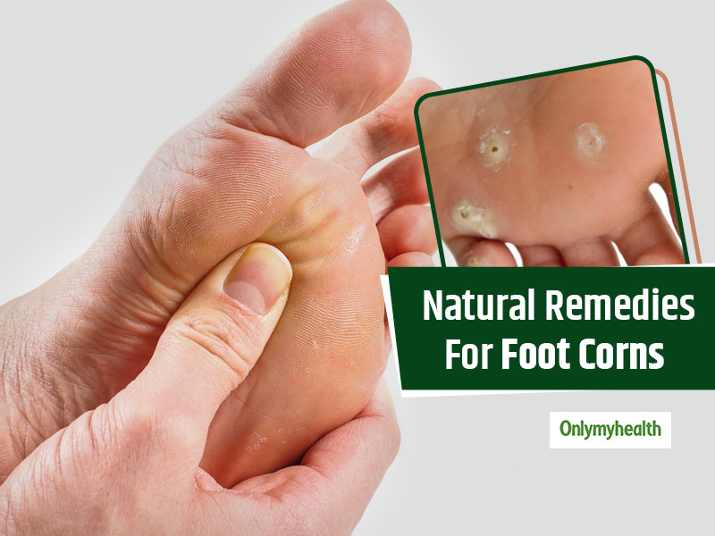 Treat Foot Corns With These Effective Ayurvedic Tips