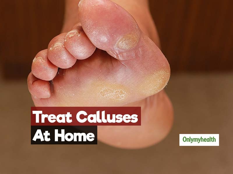 The 2-Ingredient Home Remedy To Treat The Problem Of Calluses