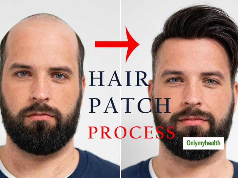 Is Baldness Affecting Your Confidence? Hair Patch Treatment Can Help You Bring Back Your Charm