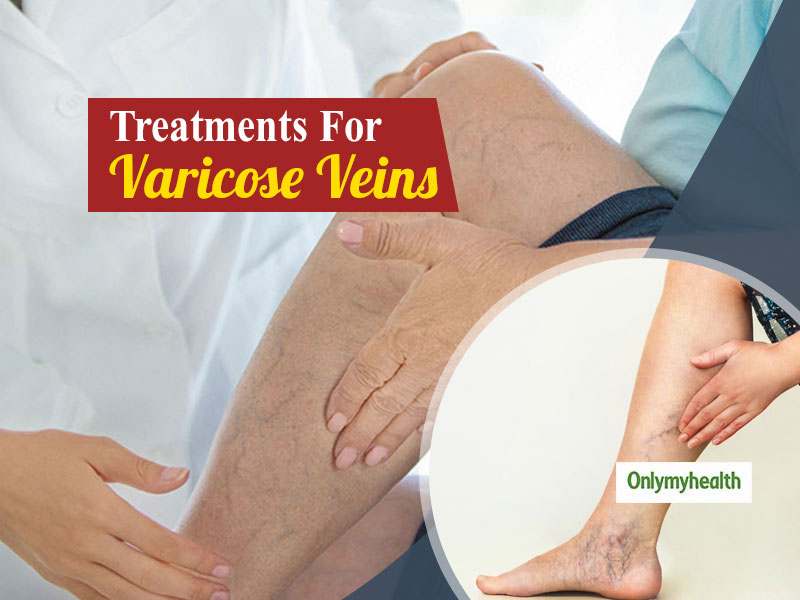 Treatment Options For Varicose Veins Explained By Dr. Saurabh Joshi