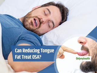 To Treat Sleep Apnoea, First Reduce Fat From Your Tongue: Study