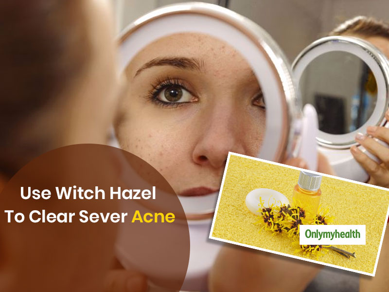 Home Remedies For Acne: Use Witch Hazel For Pimple-Free and Clear Face