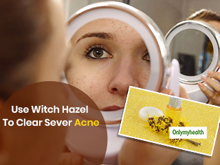 Home Remedies For Acne: Use Witch Hazel For <strong>Pimple</strong>-Free and Clear Face
