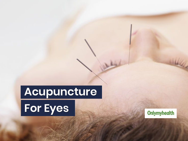 Acupuncture For Eyes: Know How This Chinese Treatment Can Make Your Vision Alright