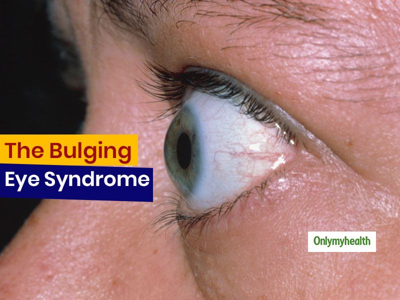 Bulging Eyes Can Be More Than Just Beautiful, It Can Be A Medical Condition Too