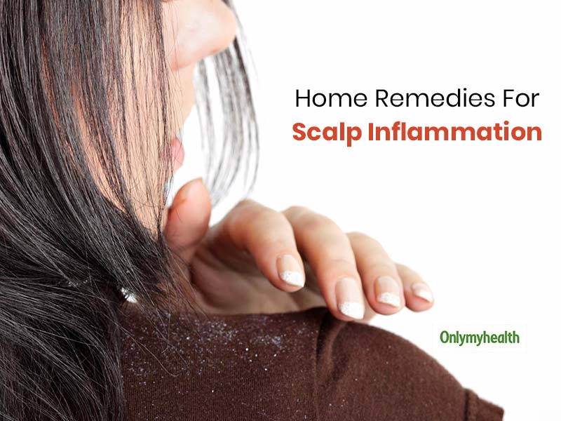 Scalp Inflammation Home Remedies: These 5 Signs Of Scalp Inflammation Can Be Treated At Home