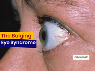 Bulging Eyes Can Be More Than Just <strong>Beautiful</strong>, It Can Be A Medical Condition Too