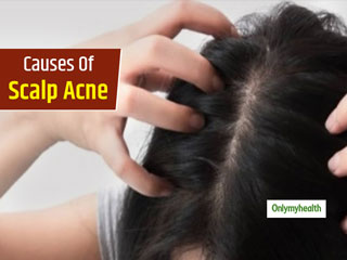 Do You Have Acne On Scalp? Know The 5 Main <strong>Causes</strong> Of Scalp Acne Breakouts
