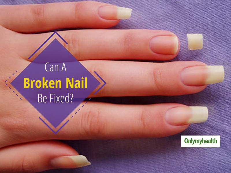 Can A Broken Nail Be Fixed? Try This Easy 8-Step Process To Glue A Broken Nail