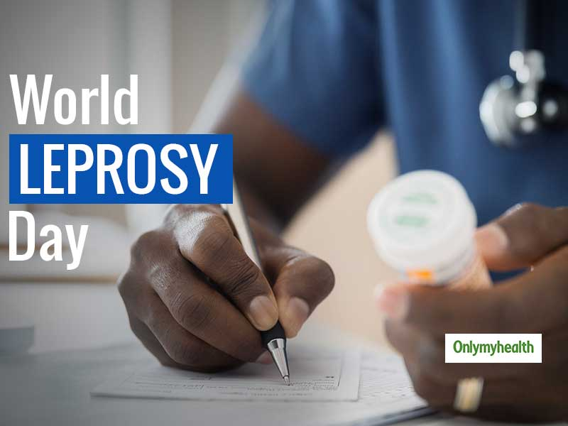 Leprosy Day 2020: Bust The Myths, Learn The Facts About Leprosy