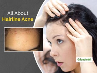 Hairline Acne: What Is This and How This Can Be <strong>Treated</strong>
