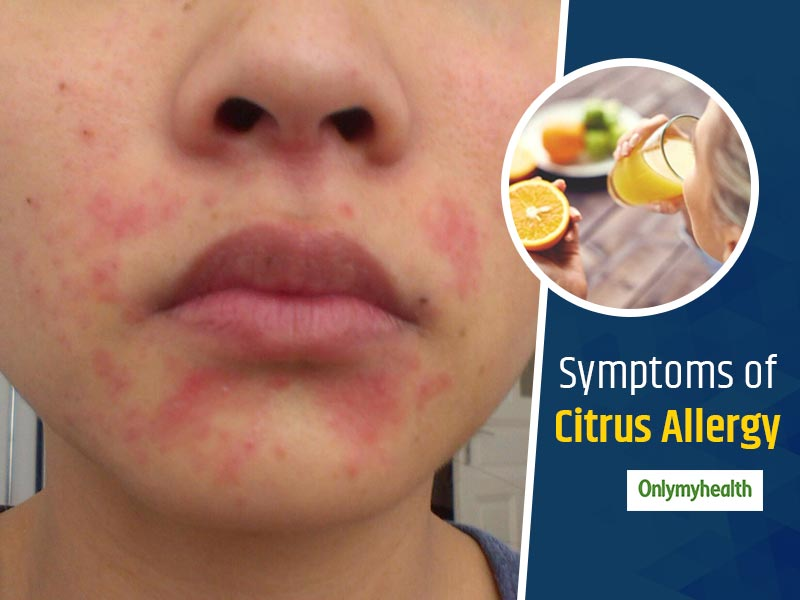 Citrus Allergy: Symptoms, Foods to Avoid, and More