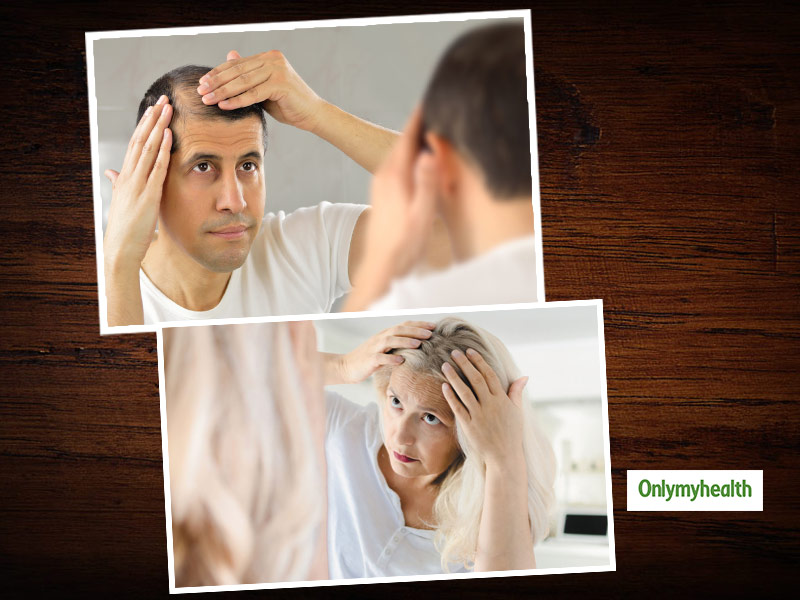 Learn About Different Types Of Hair Fall In Men And Women