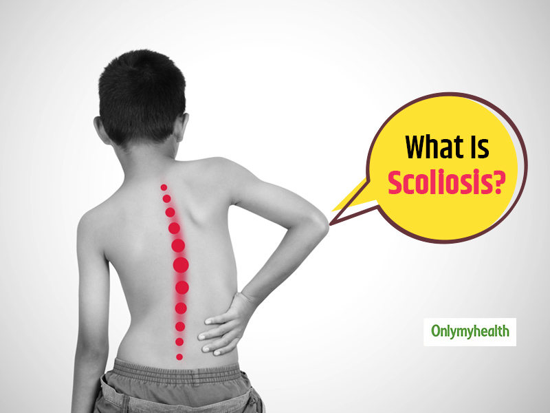 All About Scoliosis, A Lesser-Known Spinal Deformity
