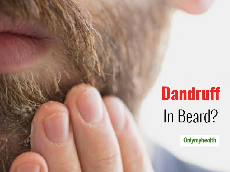 Are You Dealing With Beard Dandruff? Learn How To Remove Dandruff From Beard