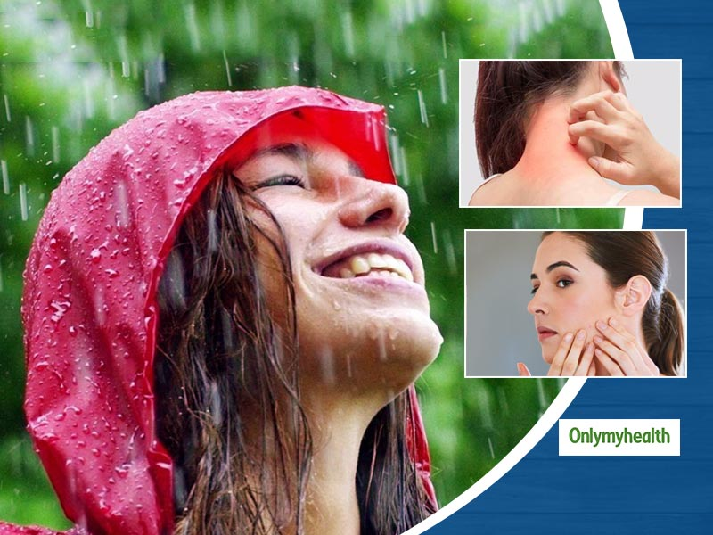 Here Are 10 Common Skin Problems During Monsoon