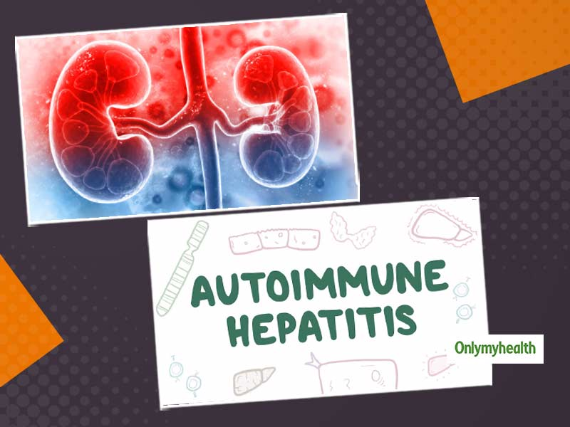 Autoimmune Hepatitis In Chronic Kidney Disease: Know-Why Prevention Is Better Than Cure